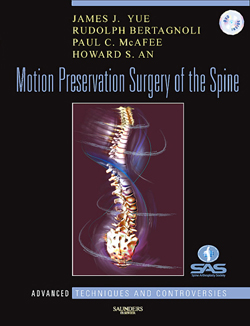 Motion Preservation of the Spine